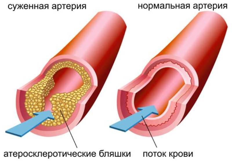 mely kenőcs segít az osteochondrozisban