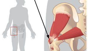 fájdalomízület csípőízület