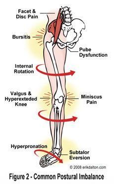 viprosil ízületi fájdalom