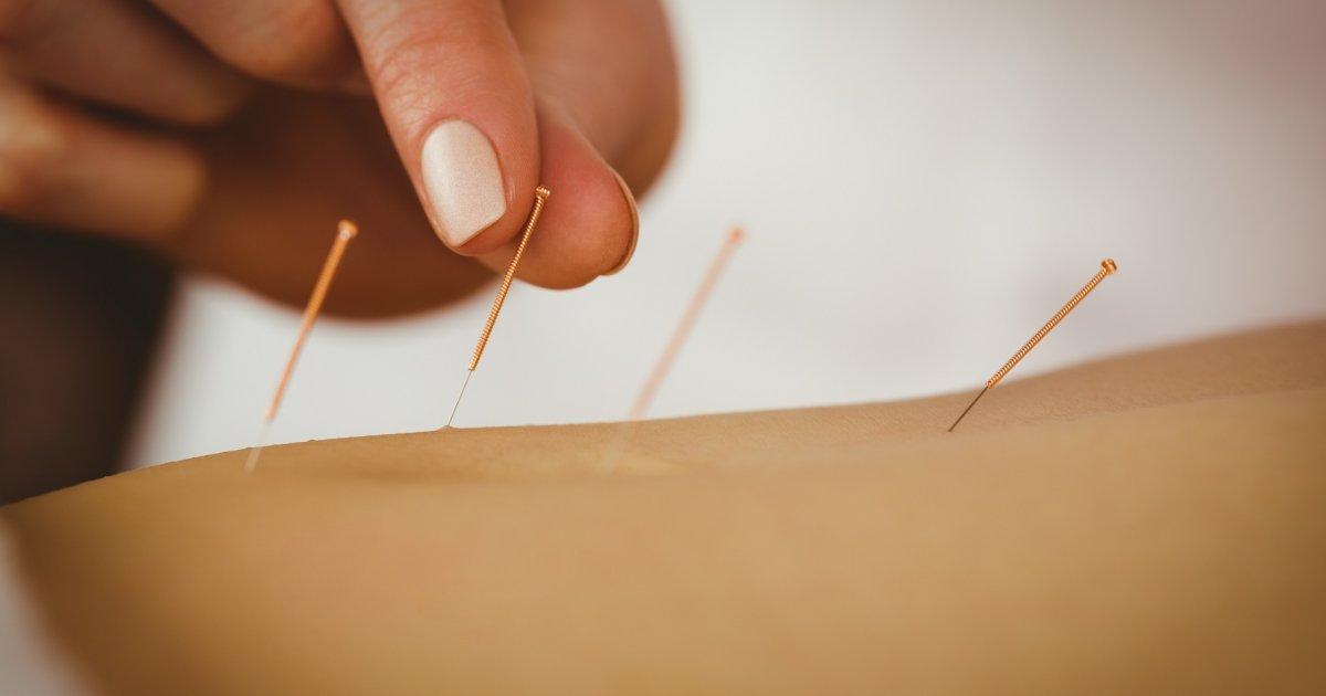 hogyan segít az akupunktúra az ízületi fájdalmakban)
