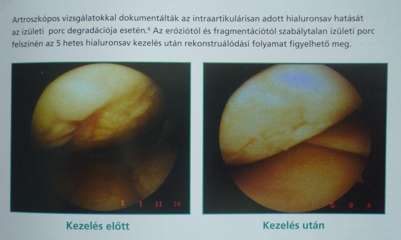hamis ízületi csípőkezelés)