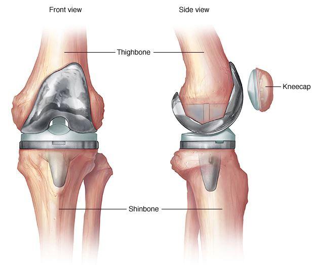 instabil térdízület ízületi fájdalom erőfeszítés után