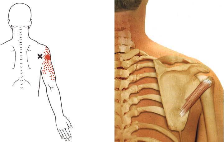 a nyaki gerinc nem feltétlen ízületeinek ízületi gyulladása