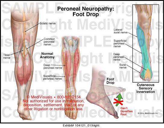 arthrosis shungitis kezelés)
