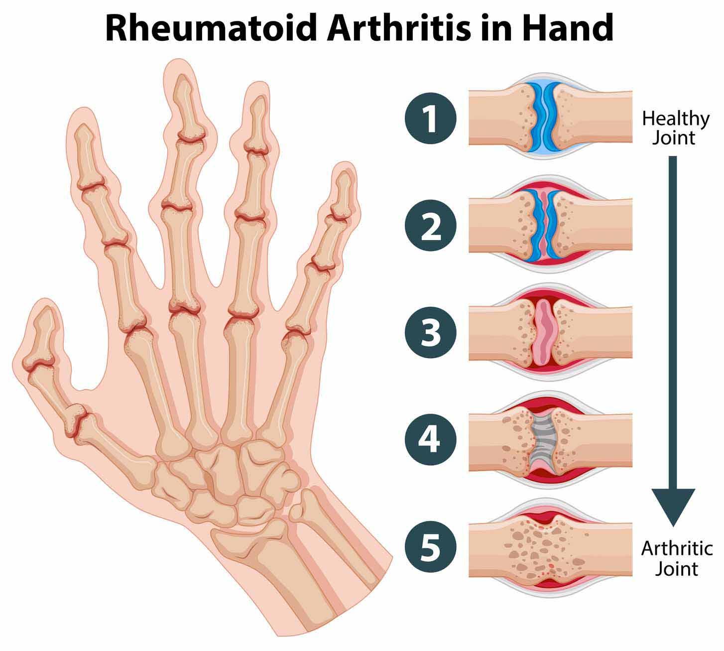 a térd artrózisa 3 fok, mi az a mutatóujj ízülete valóban fáj