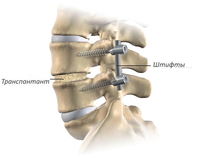 a fájdalom oka a csípőízületekben éjjel fájó fájdalom a csípőízületben