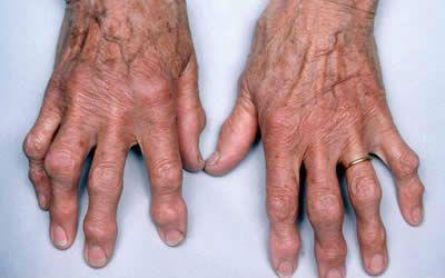 a kar meghajlásakor a könyökízület fáj mi a váll sérülés