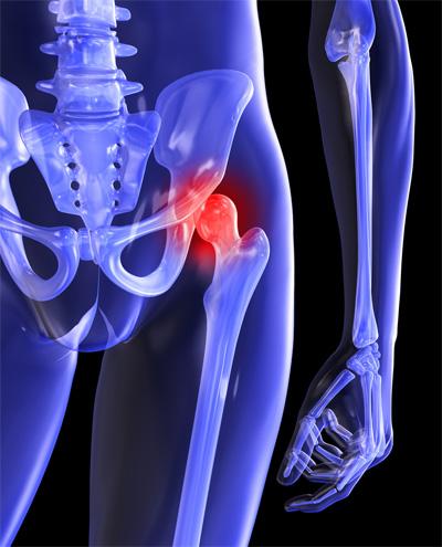 bal oldali csípőtáji fájdalom