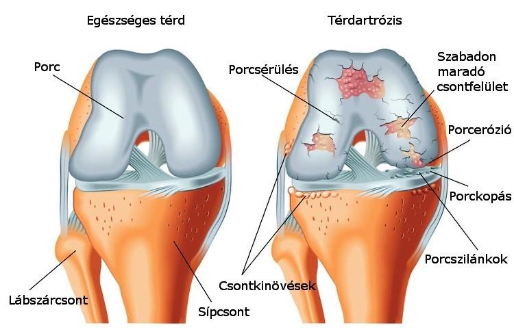 olaj artrózis kezelés