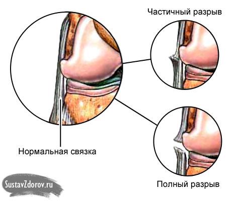 a vállízület ligamentumainak károsodása