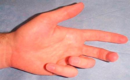 súlyos fájdalom az ujjak ízületeiben)
