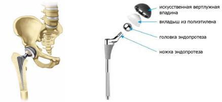 a boka ízületének deformáló artrózisa 2 fokos kezelés)
