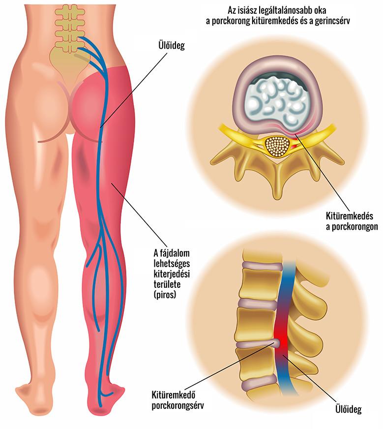 a csípőízület jobb oldali ízületi gyulladása)