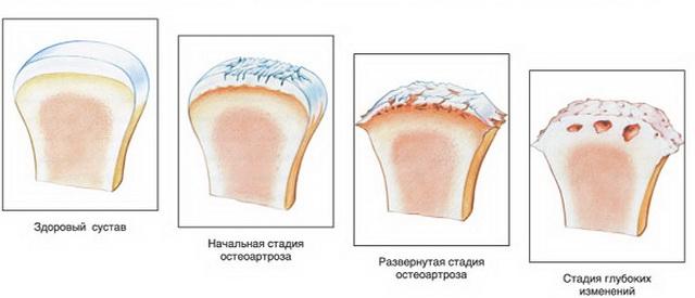térdízületek fájdalma artrózissal)
