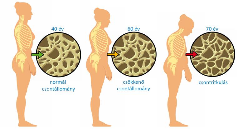 csontritkulás tünetei)