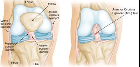 fájdalom a térdrándulásban izomfájdalom anémiás ízületekben