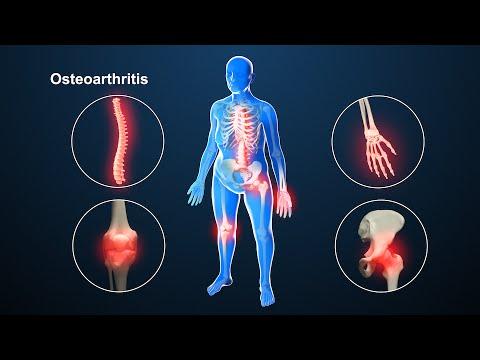 1. fokozatú térdízület osteoarthritis)