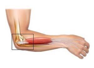 térd epicondylitis kezelés kezelni a térd ínszalagot
