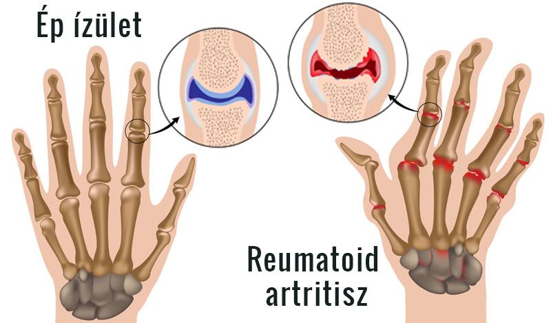 a kéz akut artrózisa és kezelése