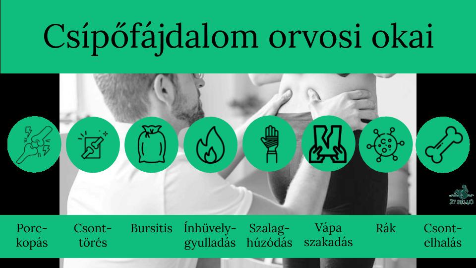 gyógyszerek a csípőízület kezelésére)