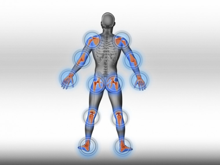 hogyan lehet gyorsan kezelni a rheumatoid arthritis ez a glükozamin-kondroitin