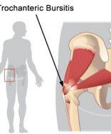 csípőízületi fájdalom és kattanások