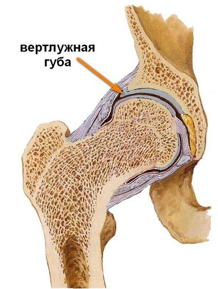 növekvő fájdalom a csípőízületben)