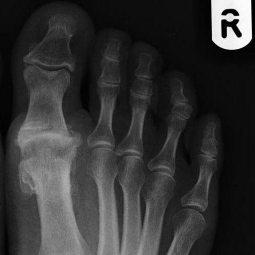 mild first mtp osteoarthritis