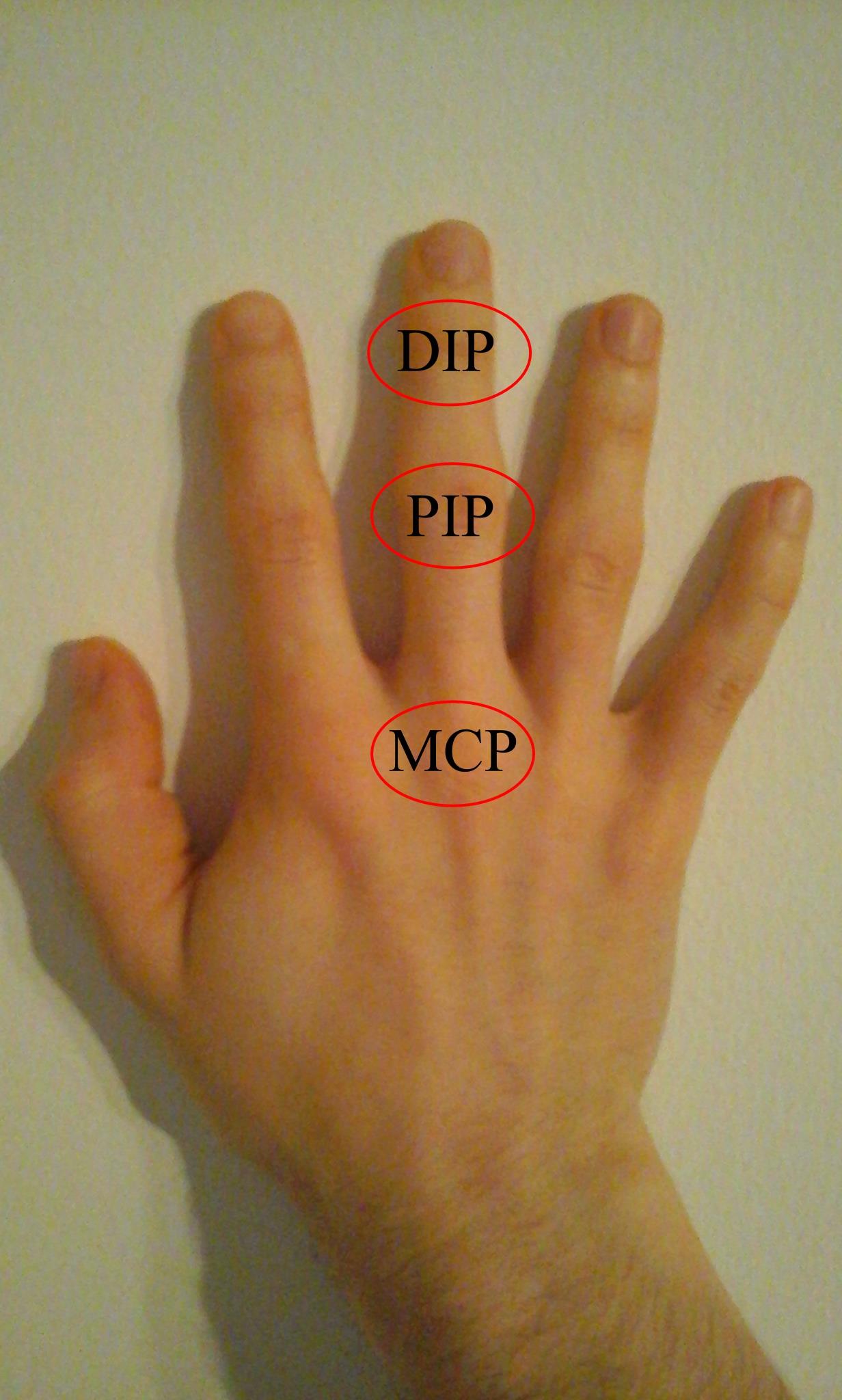 ízületi betegség jelei a kezén