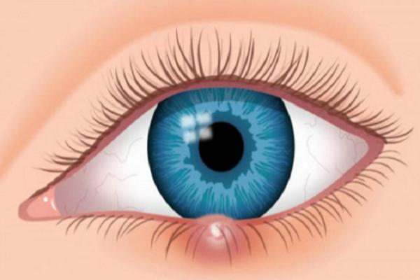 ízületi fájdalomzsákok a szem alatt