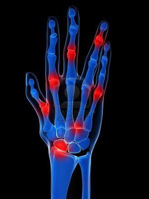 az ujjak falának ízületi gyulladása