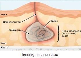 csípőízület szakrégió)