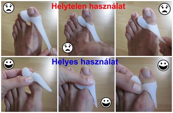 a nagy lábujj kezelő gyógyszerei