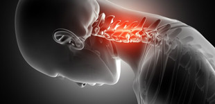 csípőcsontritkulás kezelése