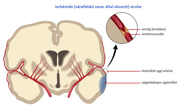 az artrózis nem kezelésének következményei)