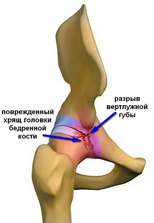 Csípődysplasia: tünetek és tennivalók