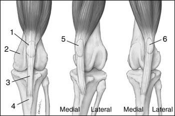 a csípőízület patella fájdalma ízületi duzzanat a sérülés után