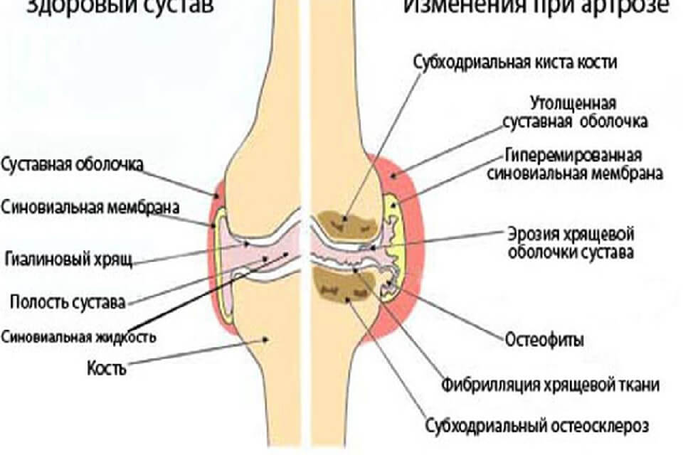 térdízület kezelés szinoviális membránjának megvastagodása)