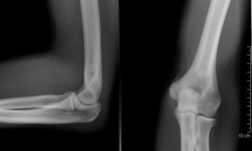 brachialis artrózis kenőcs kezelése)