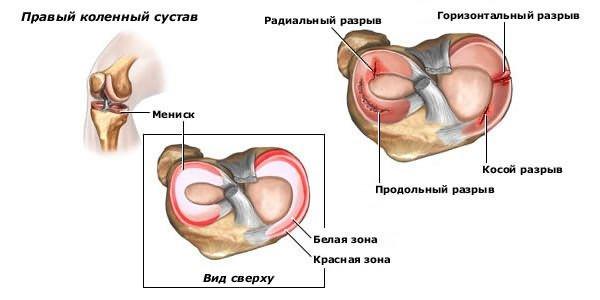 a térdízület ragasztásainak helyreállítása)