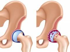 élelmiszer-zselatin - artrózis kezelésére