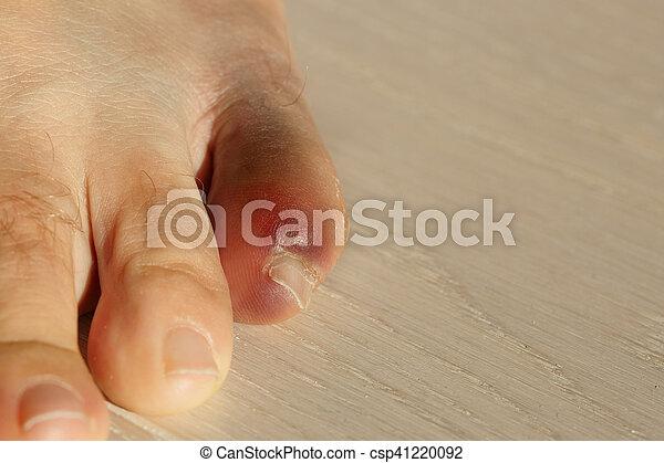 lábujj izületi gyulladása