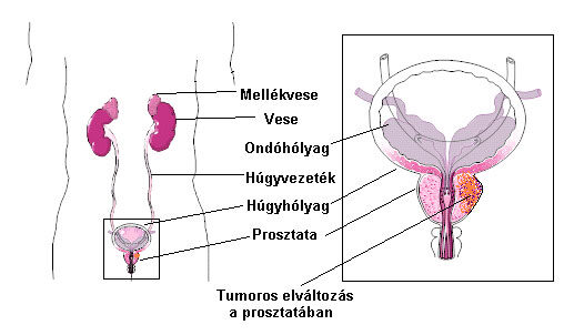 csípő áttétek kezelése)