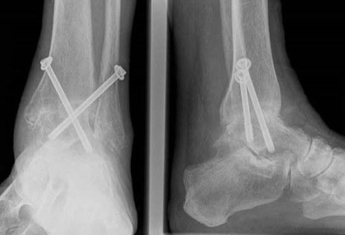 a boka deformáló artrózisa osteoarthrosis
