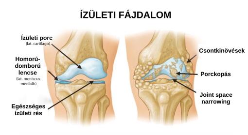 ízületi ropogás fájdalom nélkül a sportolókban kinesiotape térd ízületi gyulladás