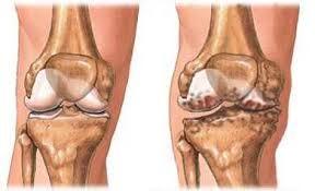 térdízületi kezelés artrózis gonarthrosis