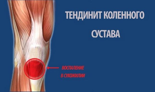 fokú térd osteochondrosis)