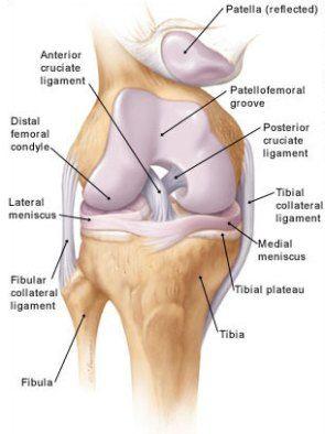 térd artritisz súlyosbodása