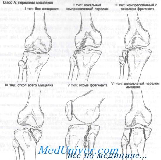 fájdalom húzása a karok és a lábak ízületeiben