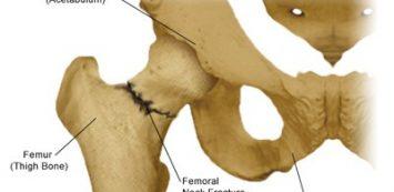 Egyperces csípőízületi gyakorlat merev csípő ellen (megelőzöd a kopást is)